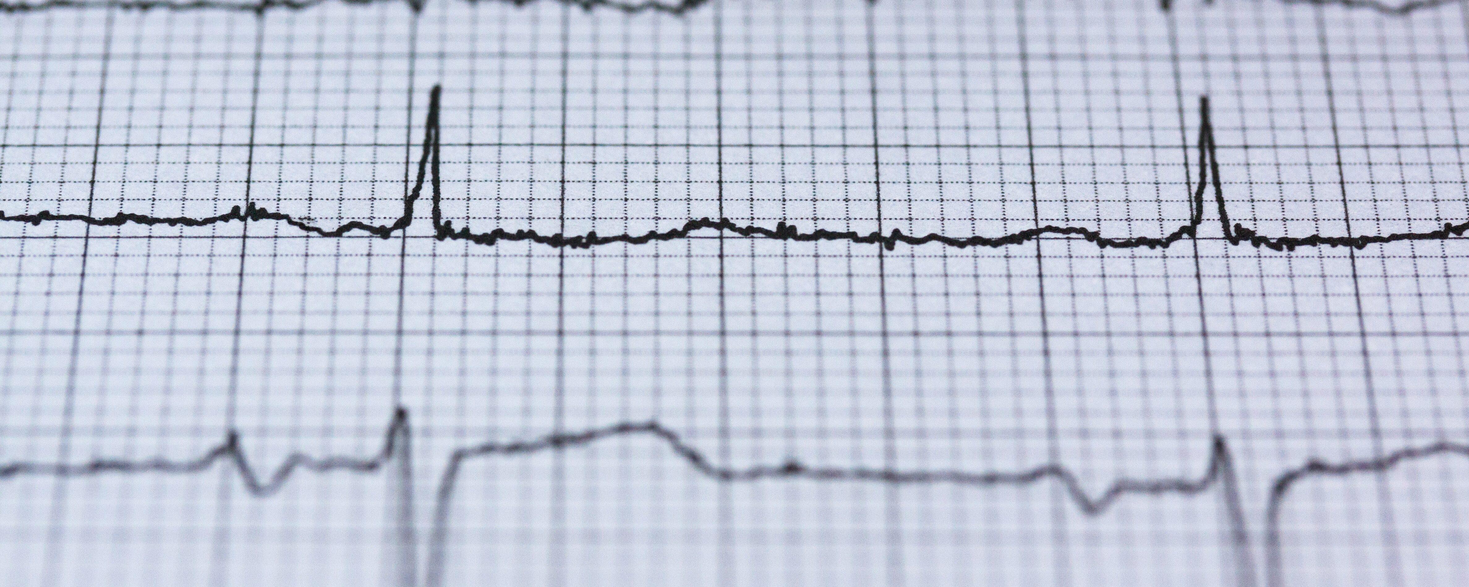 La EMS aumenta la capacidad del ventrículo izquierdo y el pico de consumo de oxígeno en pacientes con insuficiencia cardíaca crónica.